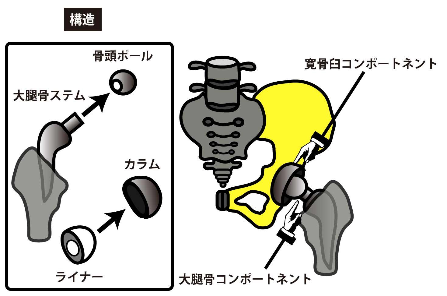 脱臼 人工 骨頭 置換 術
